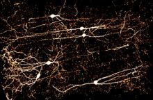VChIs neurons
