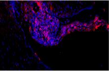 צביעה אימונופלוארסנטית של התאים העצביים המרכיבים את השתל האנושי במח העכבר